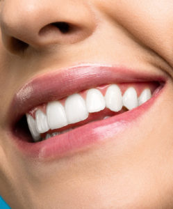 Cosmetic dentistry in charlottesville