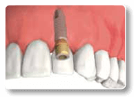 Dental Implants in Charlottesville