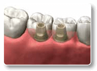 Charlottesville Dental implantation