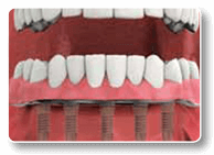 Fixed Dental Implant-Supported