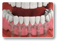 Removable Dental Implant-Supported