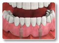 Dental Implant-Stabilized