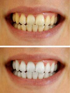 Teeth Whitening in Charlottesville